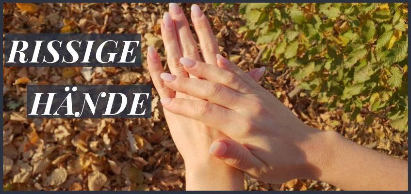 rissige Hände